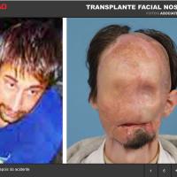 Transplante do rosto....