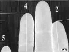Relação entre Dedo Indicador/Anelar = Tamanho do Pénis
